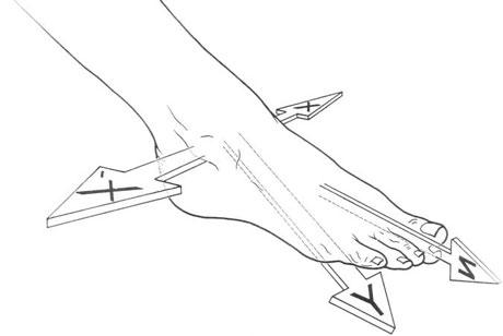 piede - dolore della caviglia