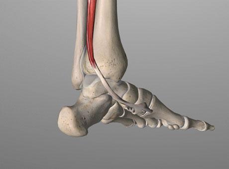 tendine del tibiale posteriore