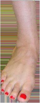 Forma del piede appiattimento della volta