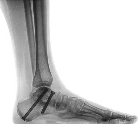 vite in titanio radiografia