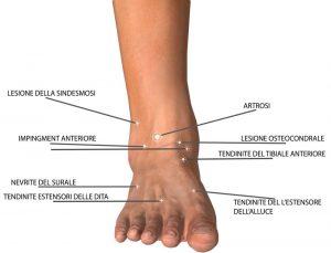 Dolori alla caviglia: possibili cause e principali rimedi